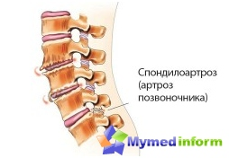 diseases of the spine, spine, back, spondylarthritis, joints