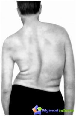 układ nerwowy, kręgosłupa, Syringomielia, rdzeń kręgowy