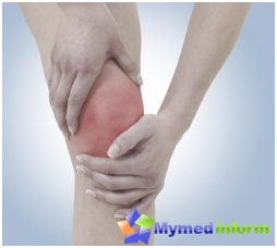 joint disease, joint treatment, orthopedics, synovitis, joints