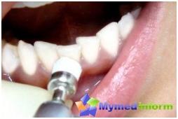 gingivitis, teeth, treatment of gingivitis, dental