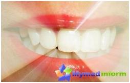 gingivitis, dientes, tratamiento de la gingivitis, dental