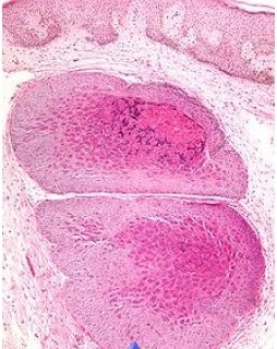 treatment-molluscum-contagiosum