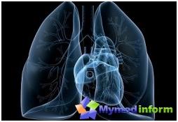 la enfermedad, la neumonía, pulmón, disnea, neumonía