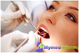 zęba, zęby, leczenie stomatologiczne, pulpa, stomatologia