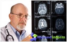 mózgu, udar mózgu, leczenie udaru mózgu, profilaktyka udaru mózgu, objawy udaru
