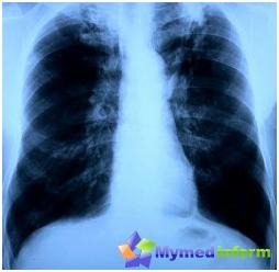 Behandling av tuberkulose folk rettsmidler