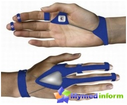 pain in the arm, pinched nerve, carpal syndrome, neuralgia, carpal tunnel syndrome