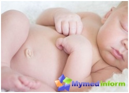 umbilical-hernia-children