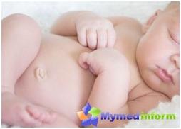 hernia, stomach, navel, the navel of the newborn, umbilical hernia