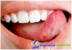дијагноза језиком, уста, уста чир, чир на језику, језиком