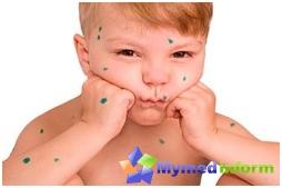 Allergien, Kinderkrankheiten, Urtikaria, Urtikaria Behandlung, Hautausschlag