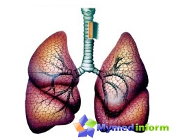 Asthma - a widespread disease. Currently, the number of patients continues to increase, despite an earlier diagnosis and modern approaches to treatment
