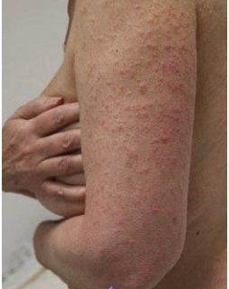 what-photodermatosis