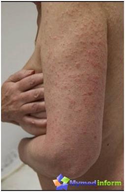 sol allergi symptom