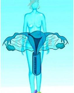 womens-diseases