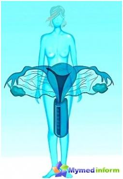 kvinnesykdommer i underlivet
