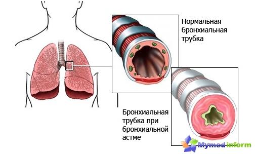 l'asthme bronchique