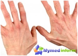 atopic dermatitis, allergic dermatitis, dermatology, skin diseases
