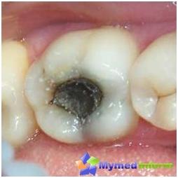 Een tand aangetast door cariës