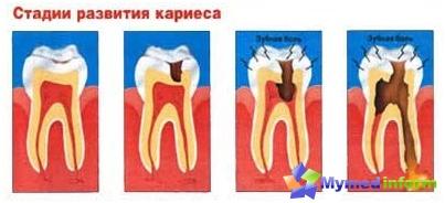 Stadia van tandbederf