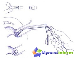 Minimalement invasives traitements pour les hémorroïdes
