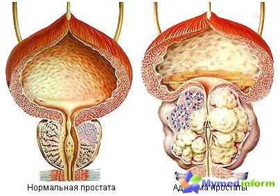 Adenoma of the prostate (prostate)