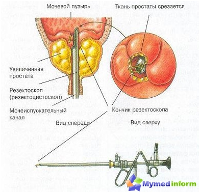 Resectoscope (resectoscope) that is used for cutting prostate tissue during transurethral resection