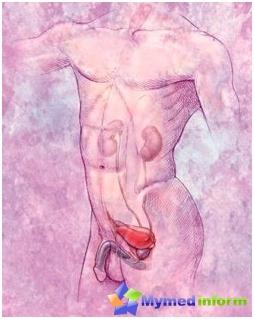 Le traitement de l'adénome prostatique (prostate)