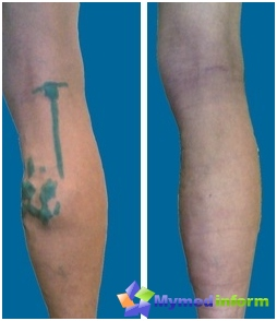 Operations with varicose veins: before (left) and after (right) Operations