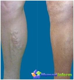 Operaciones con venas varicosas: antes (izquierda) y después (derecha) las operaciones