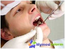 granuloma, tooth, toothache, Brush, brush teeth, swelling, dentistry