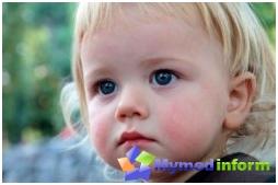 allergies, childhood diseases, diathesis, diathesis treatment, rash