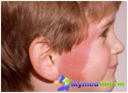 dermatologia, infekcje, choroby skóry, róża, róża