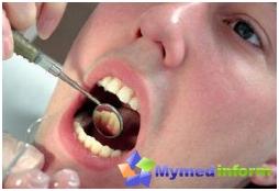 zapalenie dziąseł, przetoki, stomatologia