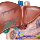 gemangioma-leveren