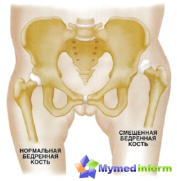 hip-displasia