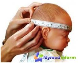 едем, хидроцефалус, мозак, дечије болести