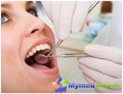 hypersalivation, oral cavity, salivary glands, saliva