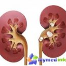 kidney-stones-folk-remedies