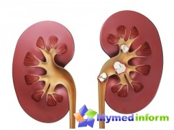 kidney stones, urolithiasis, traditional medicine, kidney, Urology