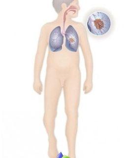 -pulmão e brônquios-