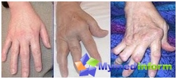 Hands skadet av leddgikt