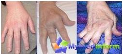 Hands damaged by arthritis