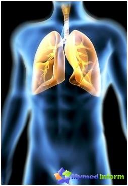 bronquios, enfermedad bronquial, enfermedad pulmonar, pulmón
