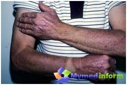 lyells síndrome