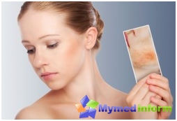 dermatology, skin, skin diseases, Lyell's syndrome