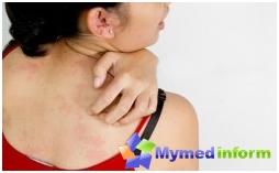 dermatologia, doenças de pele, mastocitose, erupção cutânea, leucemia de mastócitos