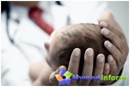 genetischen Krankheiten, Gehirn, Kinderkrankheiten, Mikrozephalie, Erbkrankheiten, Säugling
