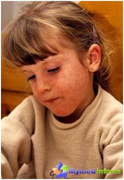 enfermedad, vacunas, enfermedades infantiles, vacunación contra el sarampión