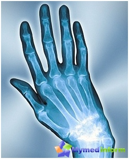 X-ray of the hand, the damaged arthritis